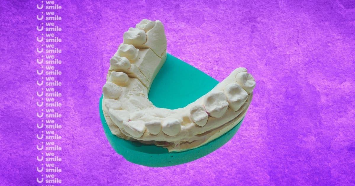 שיניים צהובות