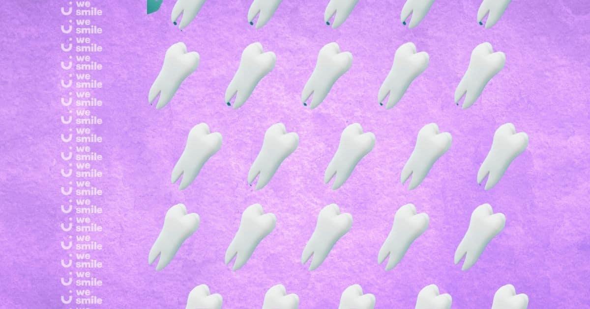 תזוזת שיניים